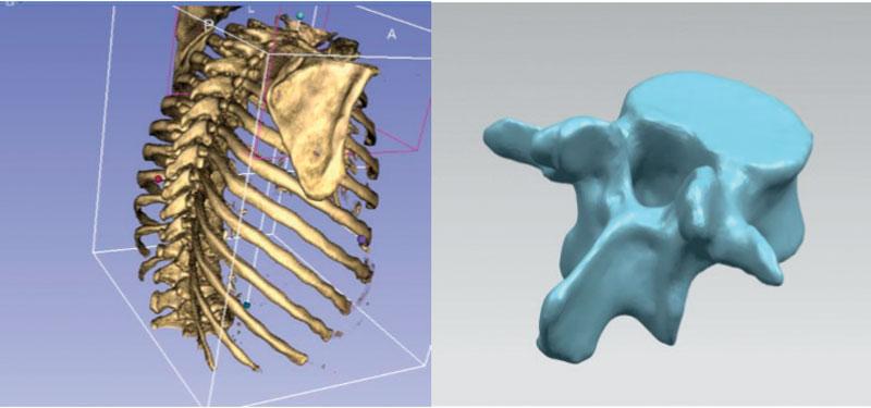 Grazie all'ausilio della tecnologia CAD è stato possibile generare in virtuale le vertebre del paziente da operare mediante acquisizione dell'indagine TAC e tracciare le traiettorie ideali (anche tramite un algoritmo completamente automatizzato).
