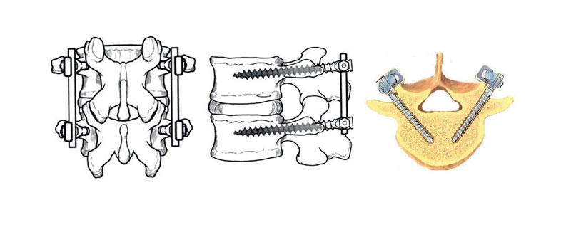 """La colonna vertebrale, o il tratto di interesse, viene """"stabilizzato"""" con l'ausilio di  barre di titanio a loro volta ancorate alla colonna vertebrale a mezzo di viti che  vengono inserite nelle vertebre attraverso un tratto molto piccolo chiamato """"peduncolo""""."""