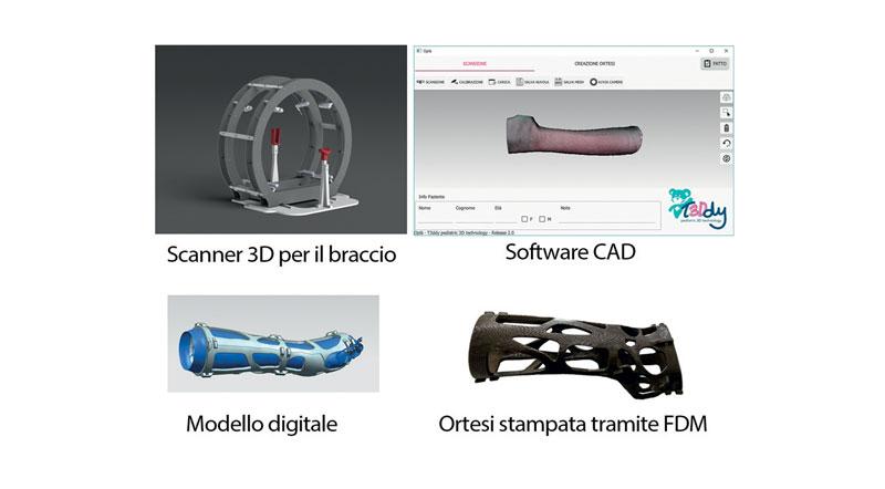 1. Processo di creazione di ortesi stampate in 3D.