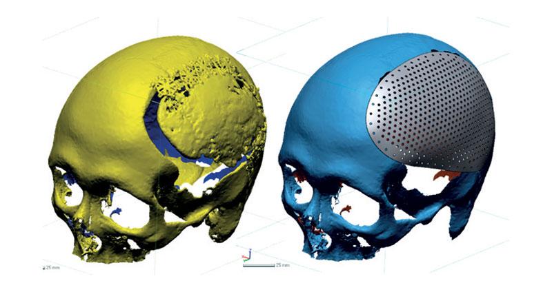 2. Modellazione semi-automatica di placche craniche.