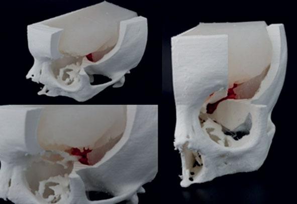 3. Simulatore per operazione chirurgica di asportazione tumorale.