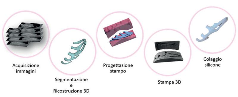 5. Processo di costruzione del simulatore per intervento di ricostruzione auricolare.