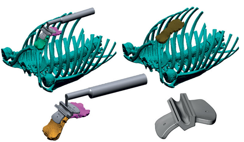 12. Sviluppo di dime di taglio personalizzate per interventi chirurgici sul Pectus Arcuatum.