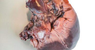 """La stampa 3D dà colore al """"bello"""" dell'anatomia"""