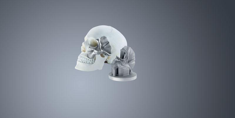 1. Esempi di dispositivi medicali prodotti con tecnologie AM per protesi dentali, spinali e ossee.