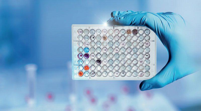 a molti anni le soluzioni automatizzate sono indispensabili nella cosiddetta diagnostica in vitro (IVD),