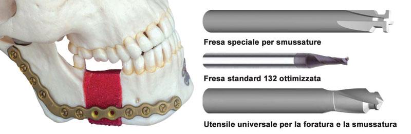 Gli utensili Inomed di Inovatools rappresentano la soluzione ideale per la lavorazione di materiali utilizzati nel settore medicale (ad esempio, nella lavorazione di piastre a compressione in titanio).